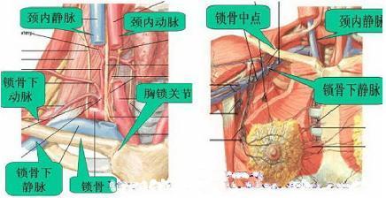 什么是完全肠道外静脉营养